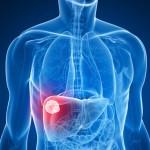 cancer du foie