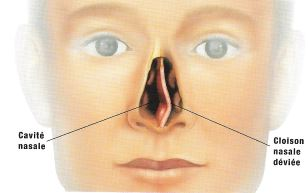 déviation clauson nasale