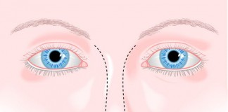 déviation cloison nasale