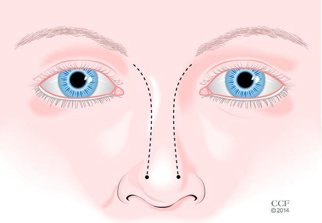 On diagnostique une déviation de la cloison nasale grâce à l ...