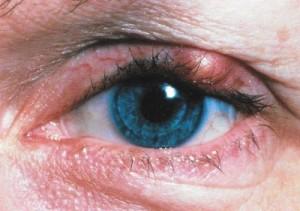 Orgelet traitement diagnostic et facteurs de risque for Interieur paupiere inferieure rouge