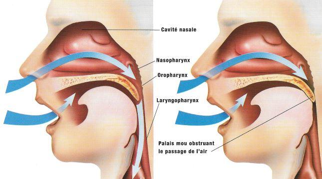 Une anomalie structurelle du nez ou de la gorge peut partiellement obstruer le flux d'air et provoquer un ronflement. Durant le sommeil profond, les tissus se relâchent et les voies aériennes rétrécissent les faisant vibrer au contact les uns des autres. Dans les cas extrêmes, la respiration s'arrête et c'est l'apnée, une affection grave.