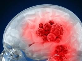 représentation tumeur cérébrale