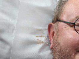 auriculothérapie
