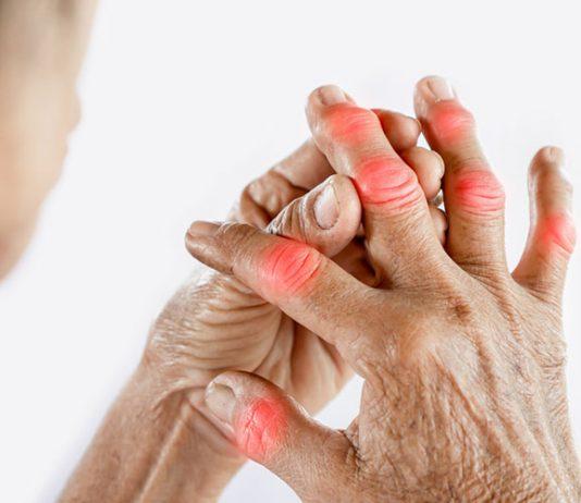 soulager l'arthrose